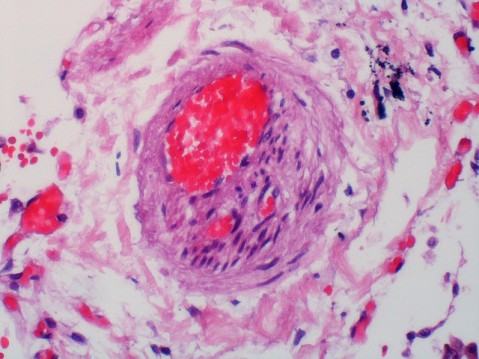 Photo credit: Pulmonary Pathology / Foter / CC BY-SA